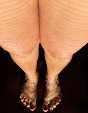 Color Photograph by Gina Shelley titled: Alien Legs, created in 2010
