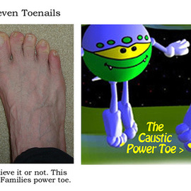 Michael Pickett: 'Eleven Toenails', 2008 Other Photography, Education.